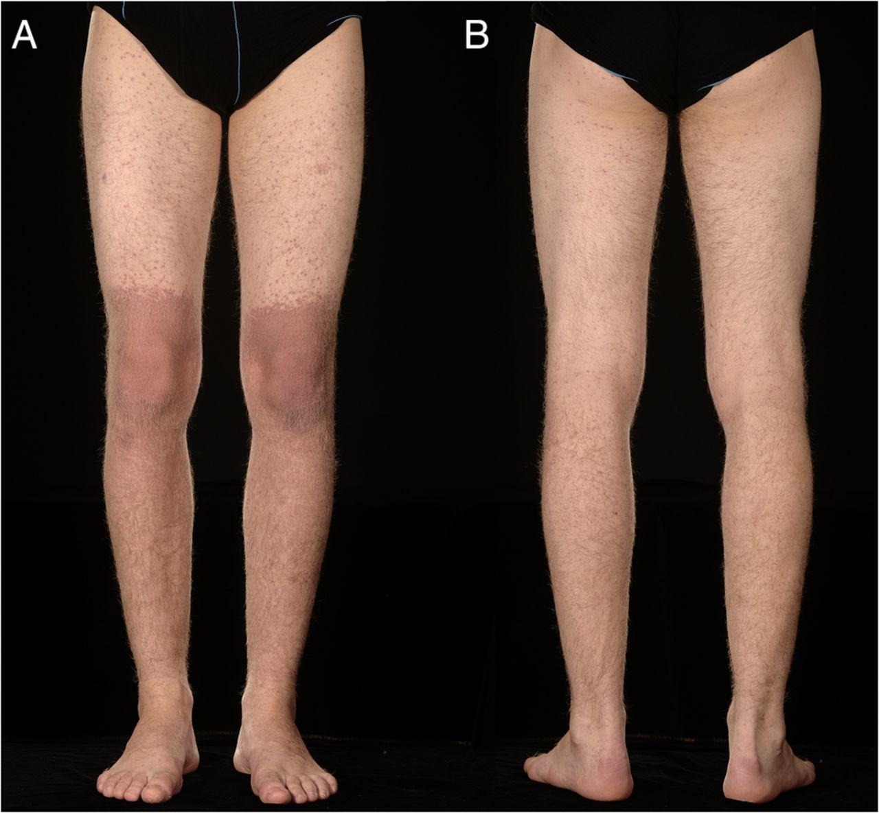 Amoxicillin-associated rash in glandular fever | BMJ Case