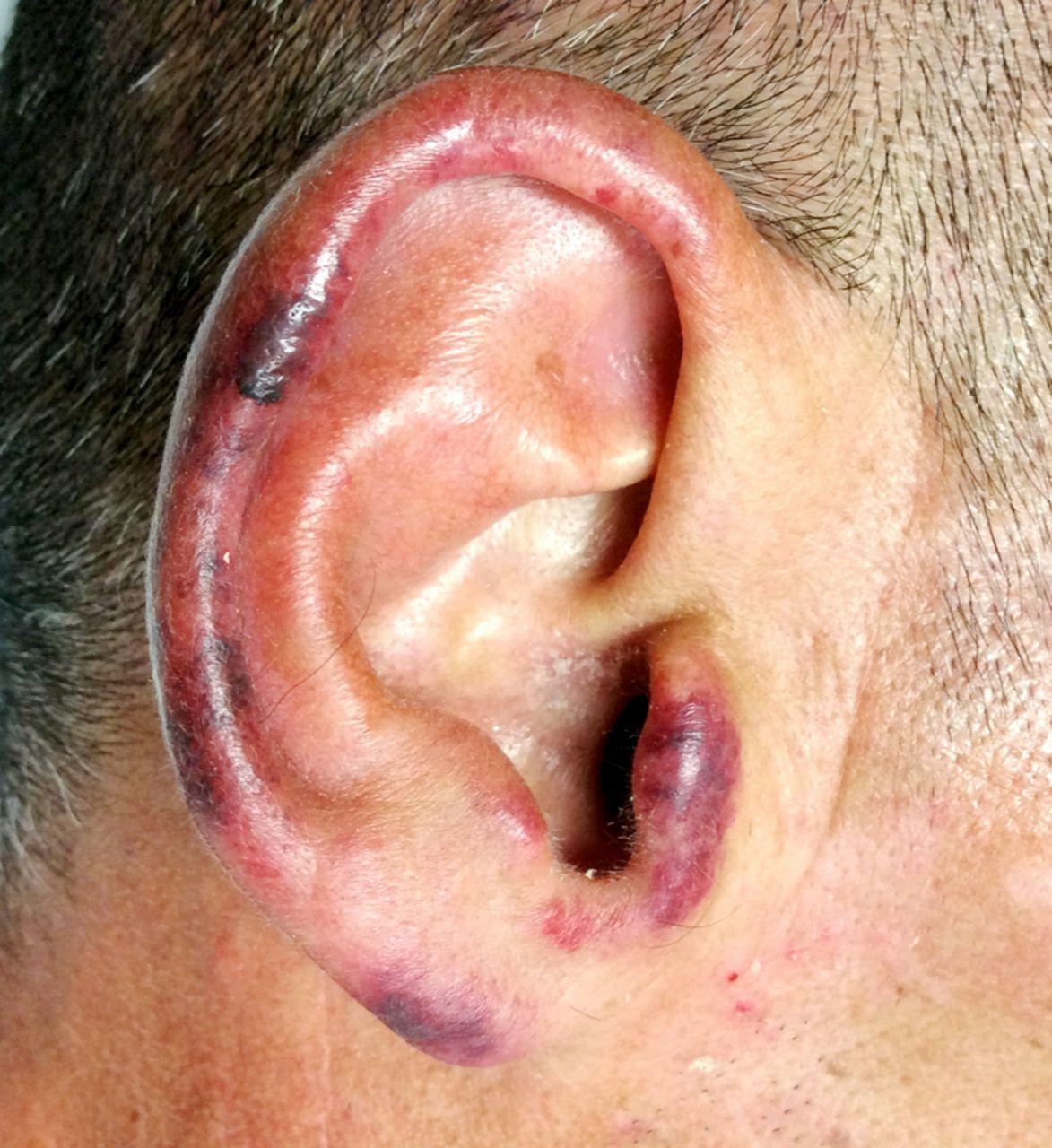 Levamisole-adulterated cocaine: a case of retiform purpura