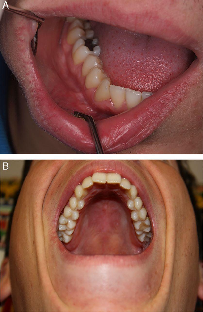 Oral Manifestations Of Crohn U0026 39 S Disease