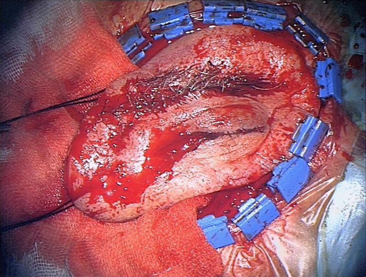 Surgical resection of invasive adenoid cystic carcinoma of ...