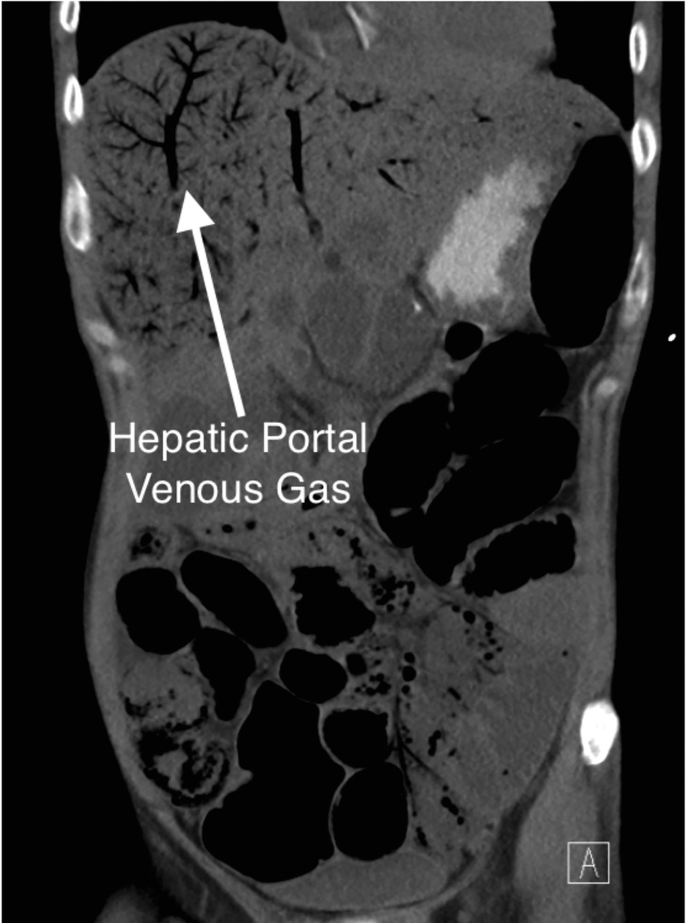 Hepatic portal venous gas with associated bowel ischaemia for Hepatic portal v