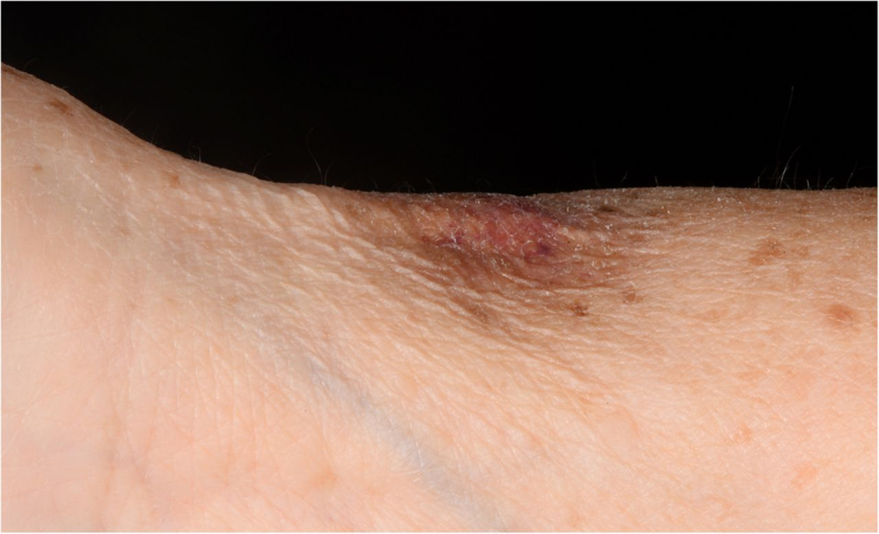 Making a dent with corticosteroid injections for de