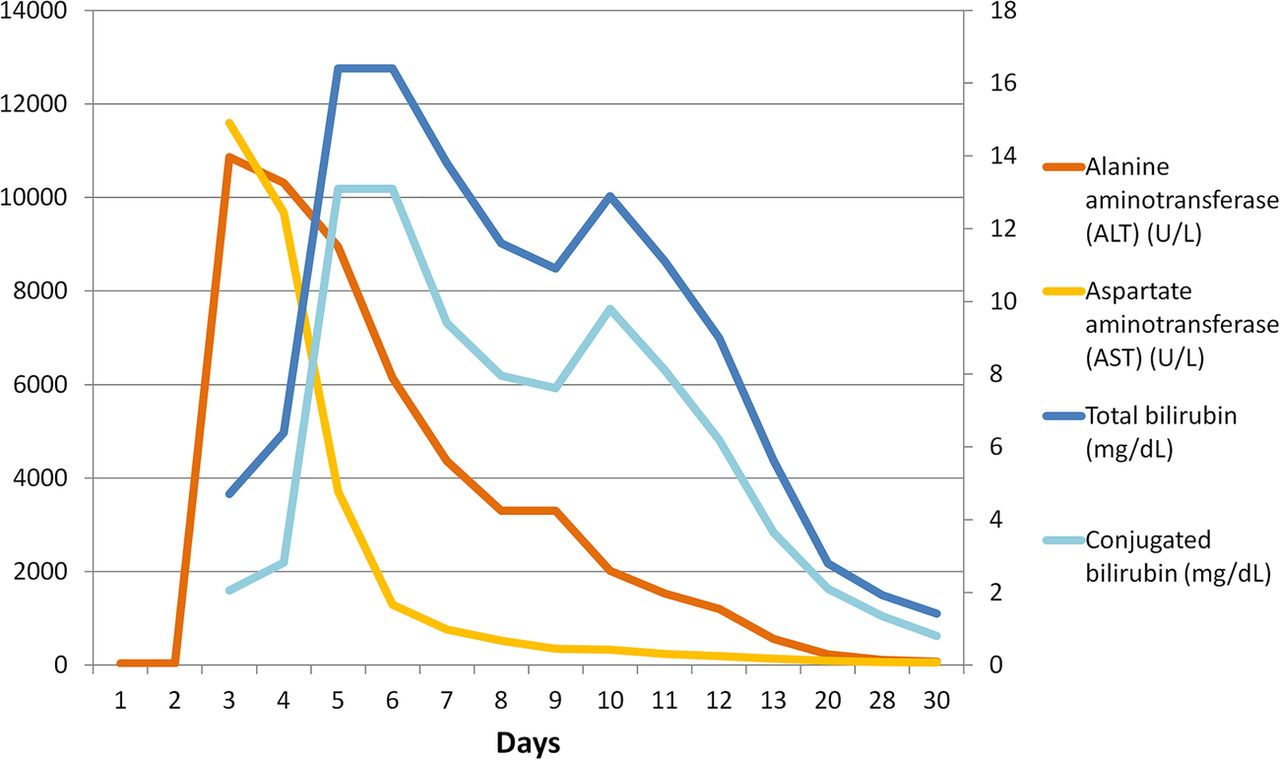 Exertional heat stroke and acute liver failure: a late dysfunction