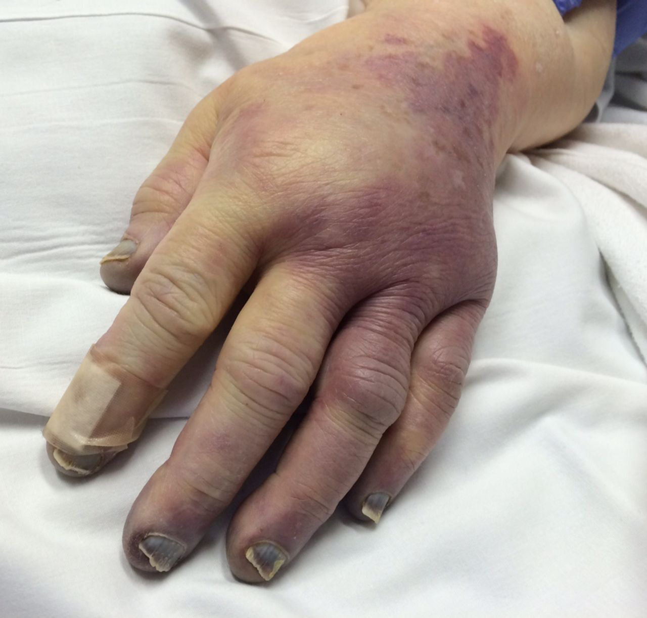 purpura fulminans and severe sepsis due to pasteurella