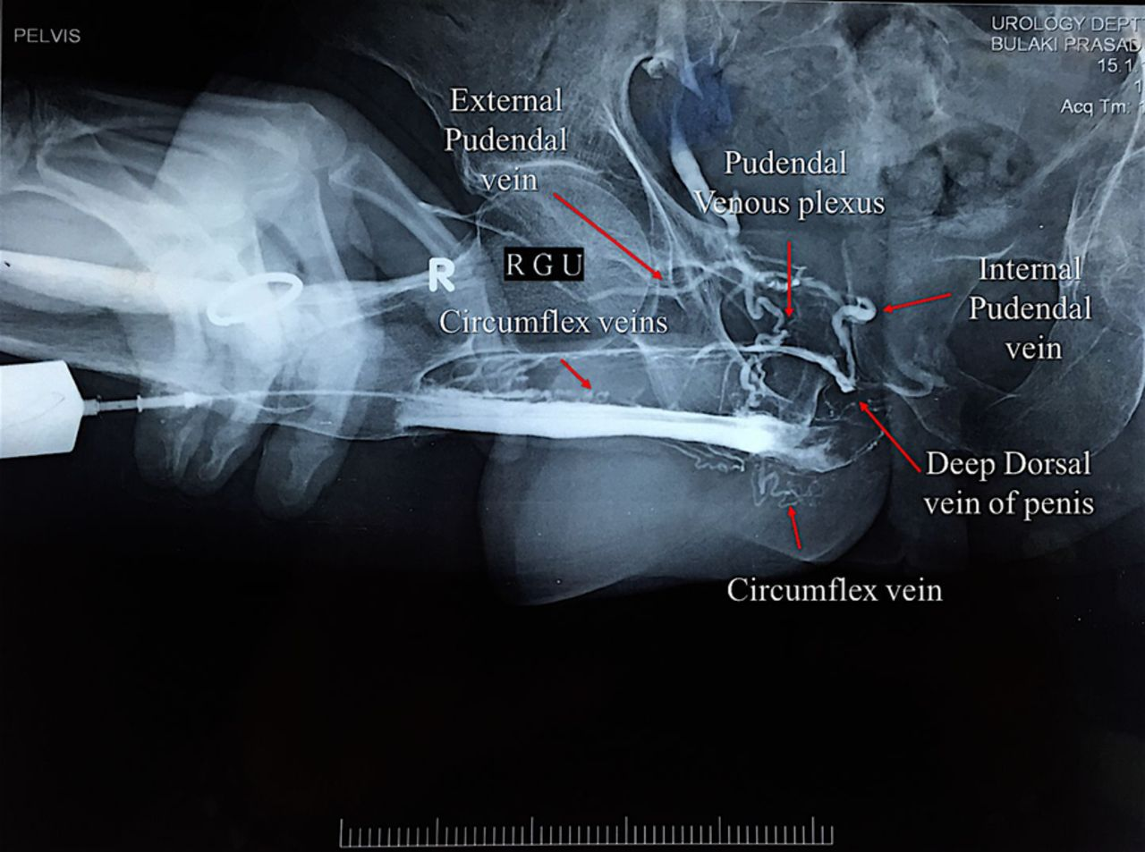 Urethro-venous intravasation: a rare