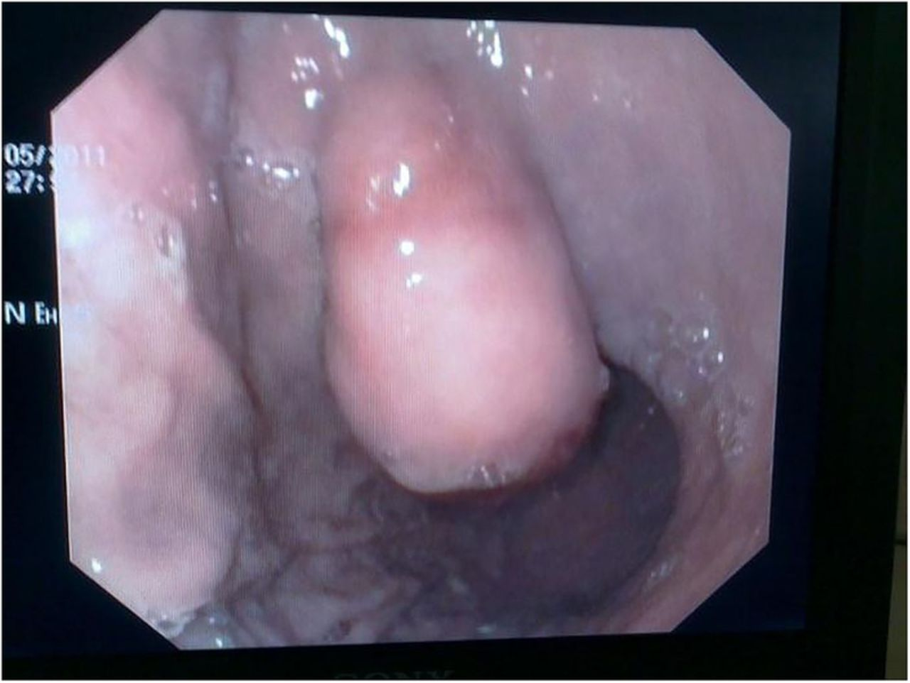 Gastric lipoma: an unusual cause of dyspeptic symptoms | BMJ Case