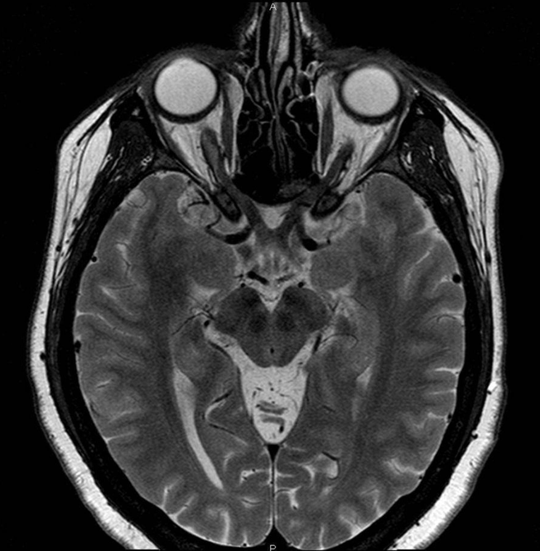 Total Recovery Of Optic Nerve Sheath Meningioma Bmj Case