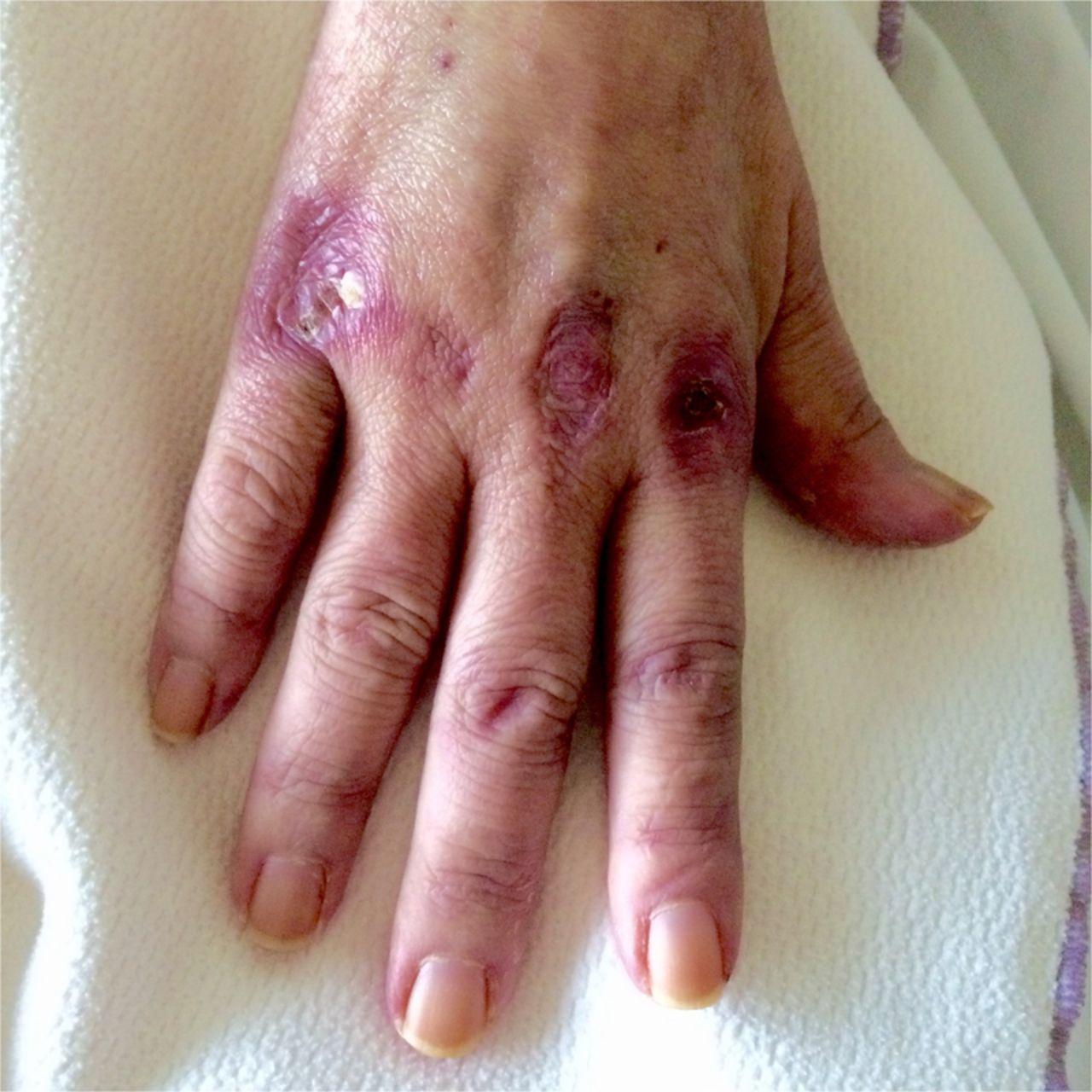 Cardiac Tamponade As A Manifestation Of Severe