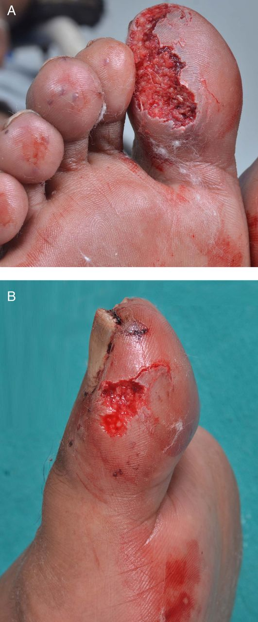 Vibration In Foot >> Rat bite ulcer in an insensate foot | BMJ Case Reports