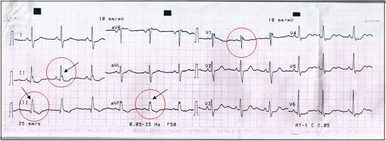 Crochetage Sign On Ecg In Secundum Asd Clinical Significance Bmj