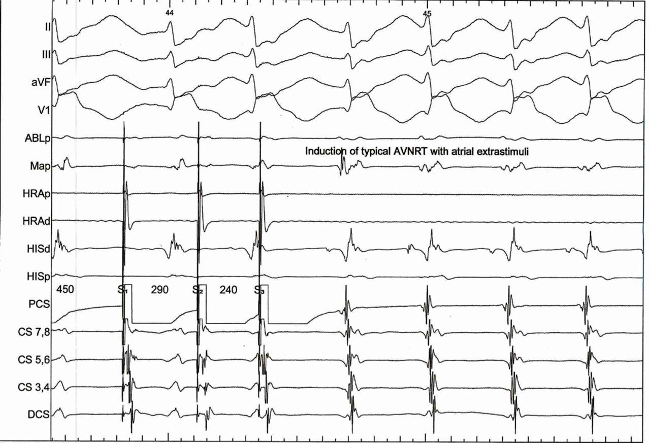 Supraventricular Tachycardia Diagnosed By Smartphone Ecg Bmj Case Reports