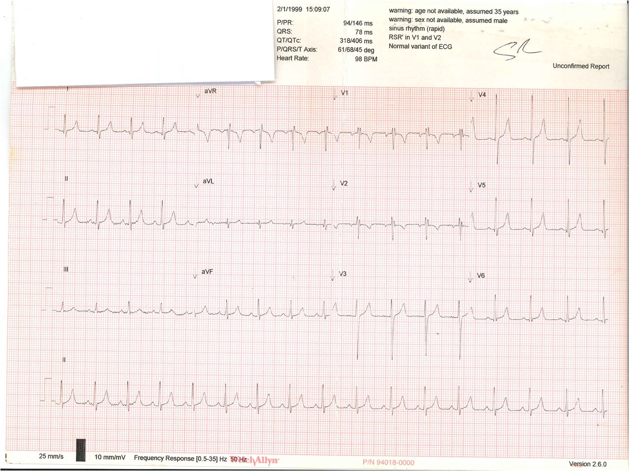 Cardioversion of a supraventricular tachycardia (SVT) in a 7
