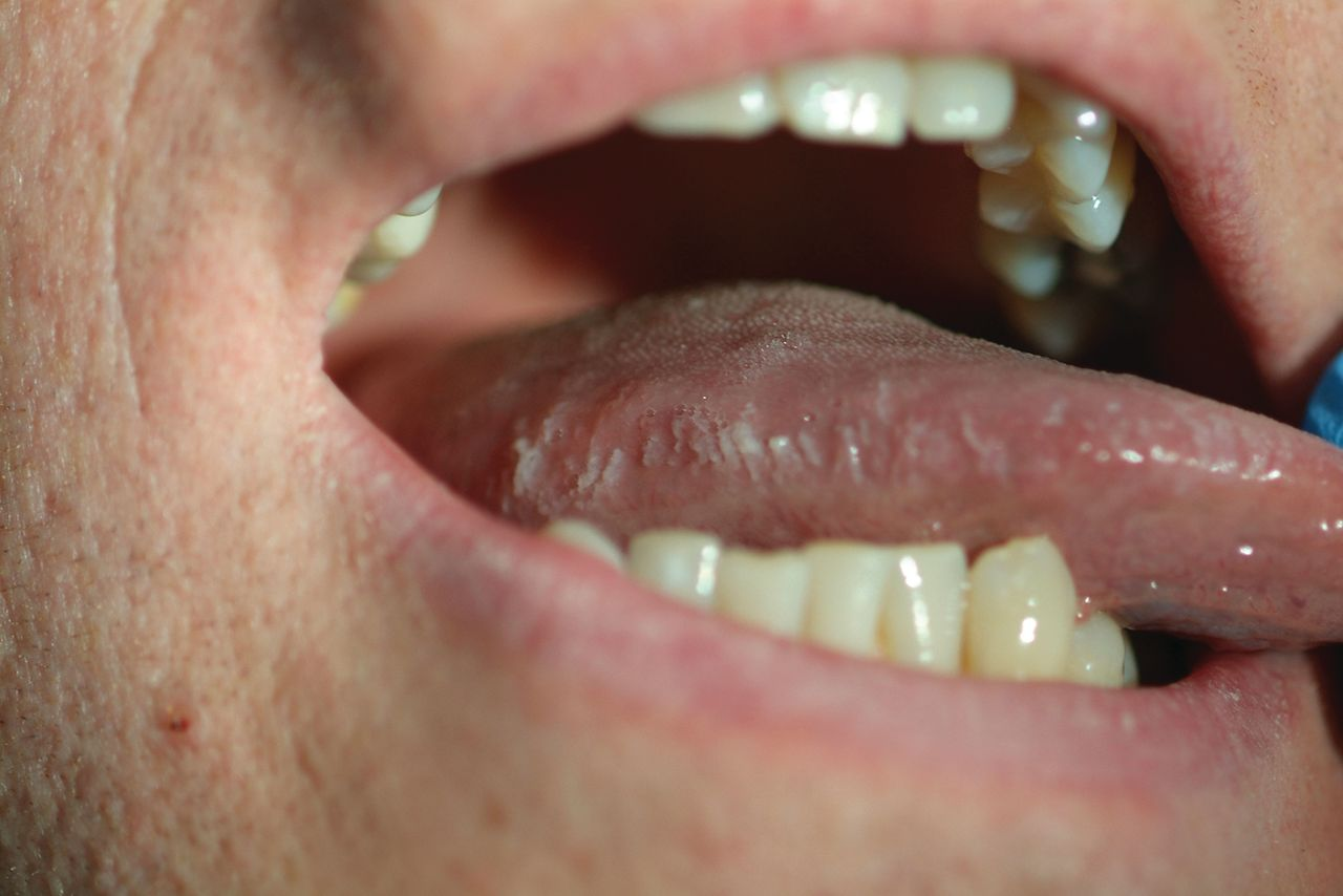 Oral hairy leukoplakia arising in a patient with hairy ...