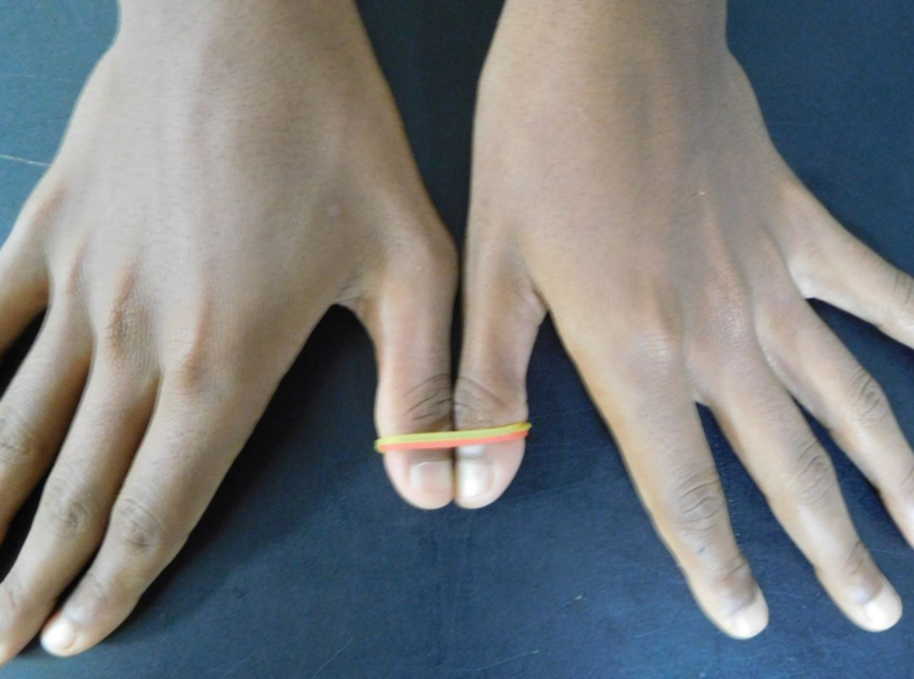 Simultaneous combined complete tear of radial and ulnar