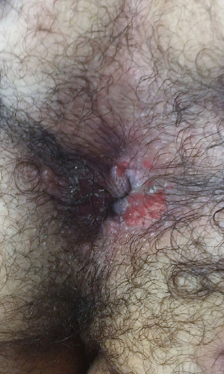 Anal Herpes  Bmj Case Reports-5145