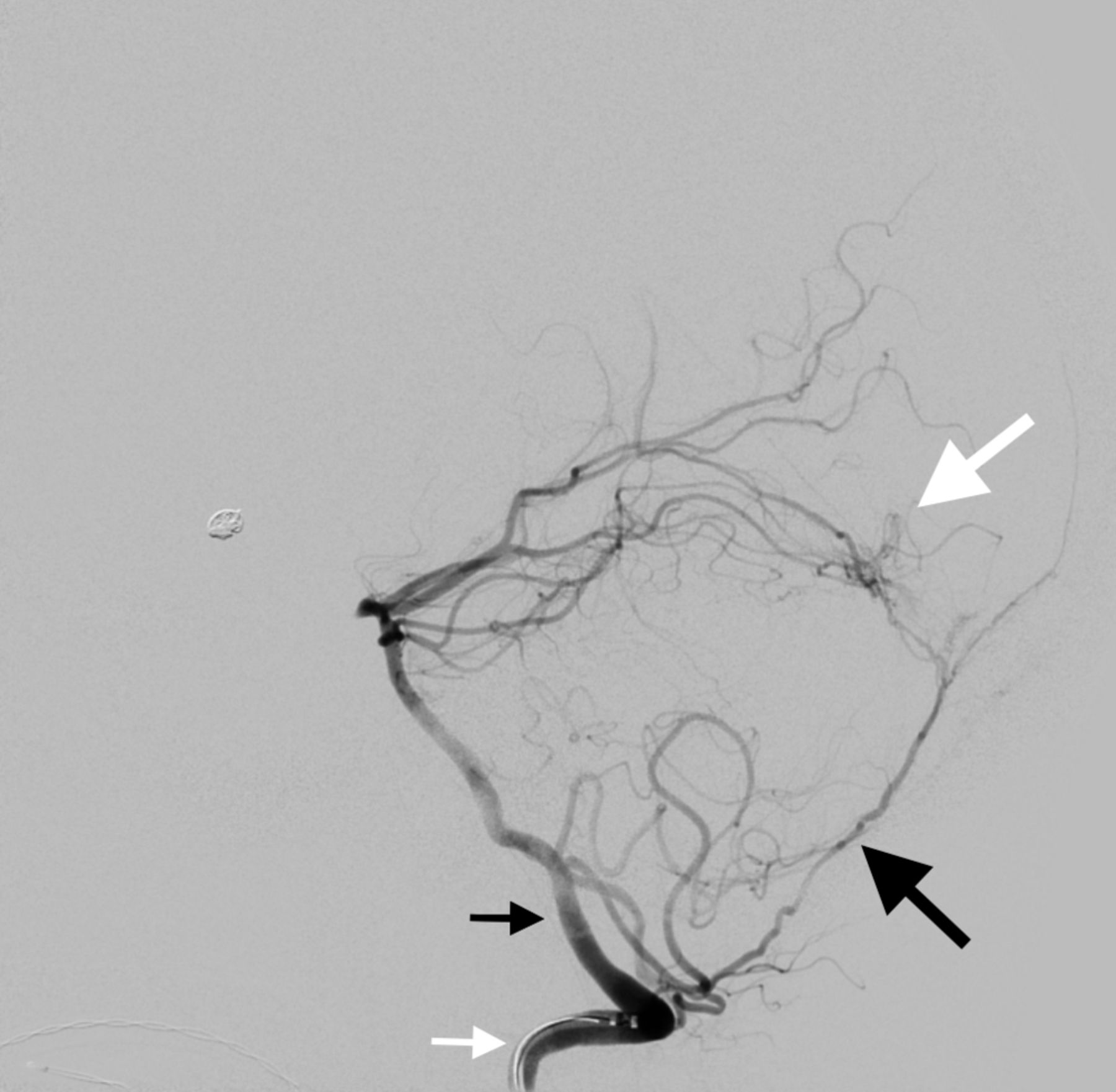 Posterior meningeal artery DMSO injection resulting in