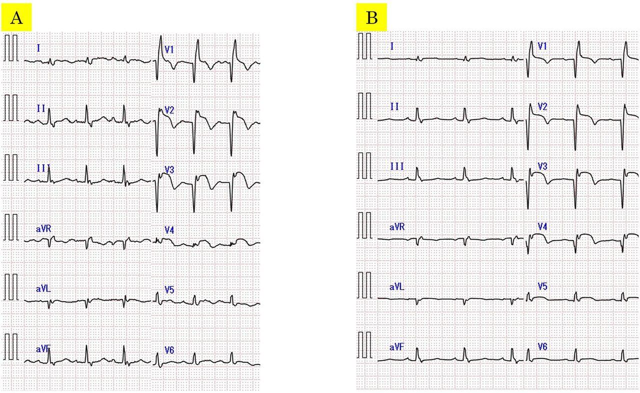 Spontaneous closure of ventricular septal perforation