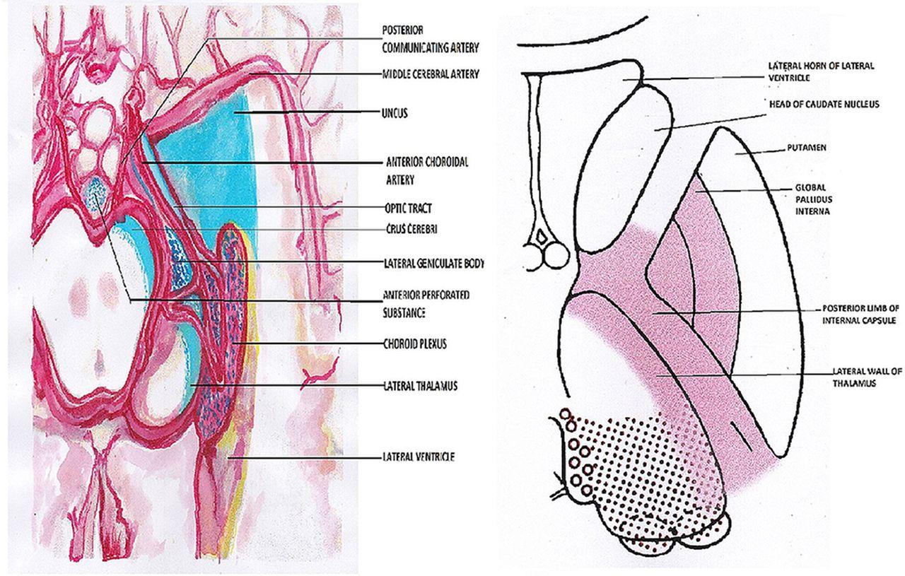 Anterior Choroidal Artery Infarction Bmj Case Reports