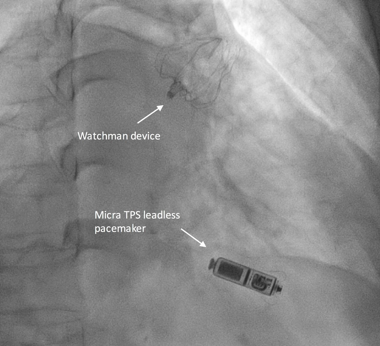 Implant Of A Left Atrial Appendage Occluder Device