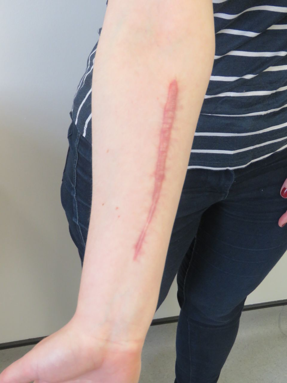 Self Harm Scar Revision Bmj Case Reports