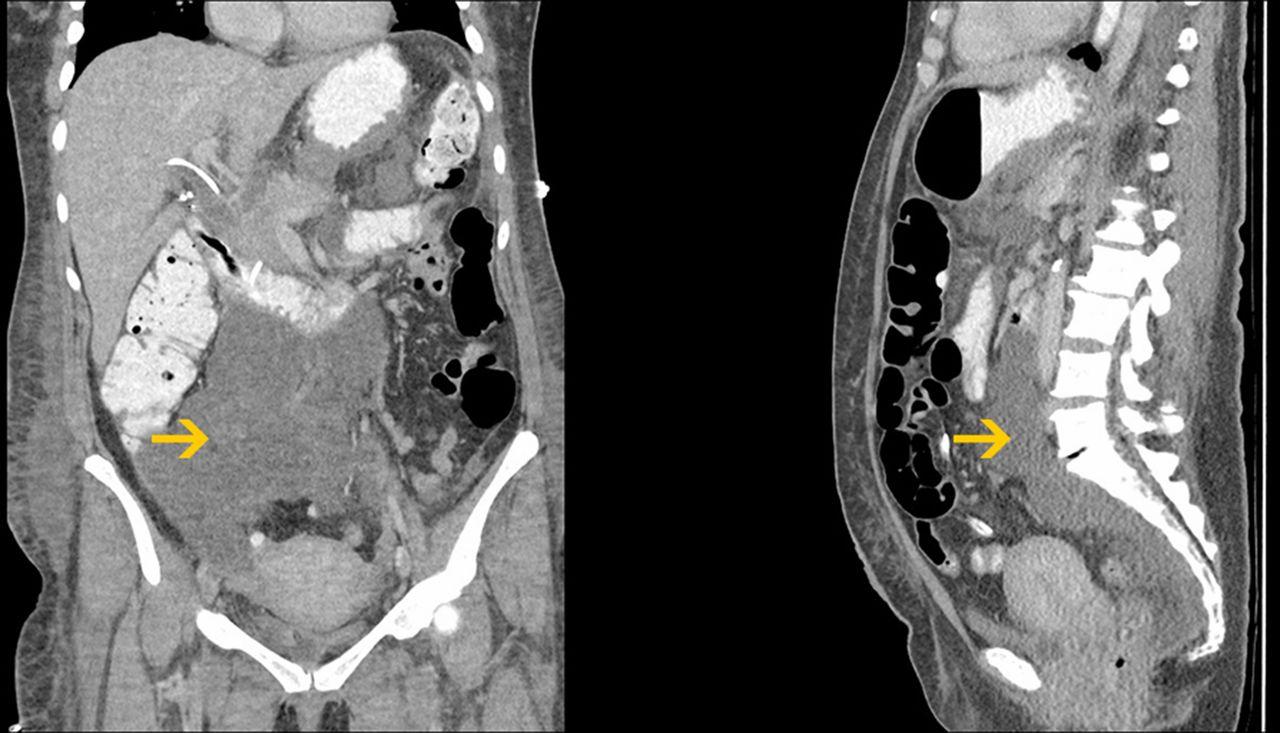 Retroperitoneal bile leak after laparoscopic cholecystectomy | BMJ