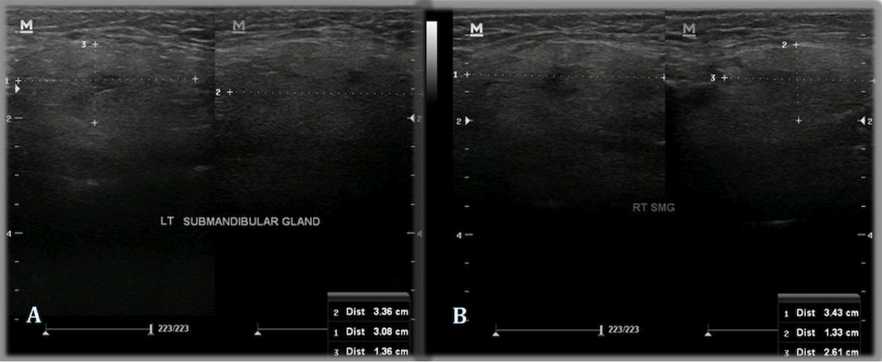 Non-ionic iodinated contrast-induced sialadenitis with