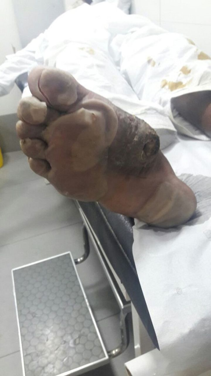 Burn aggravated infected wart in a patient with type 2