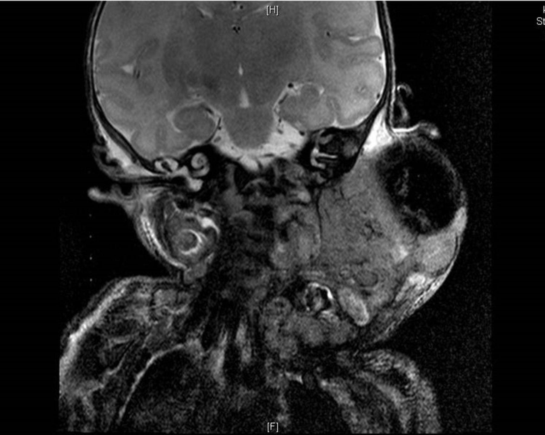 Malignant rhabdoid tumour of the neck in a neonate | BMJ