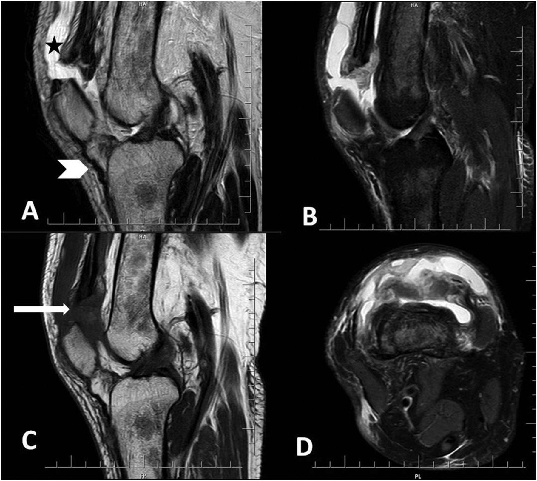 Spontaneous Bilateral Quadriceps Tendon Rupture In A