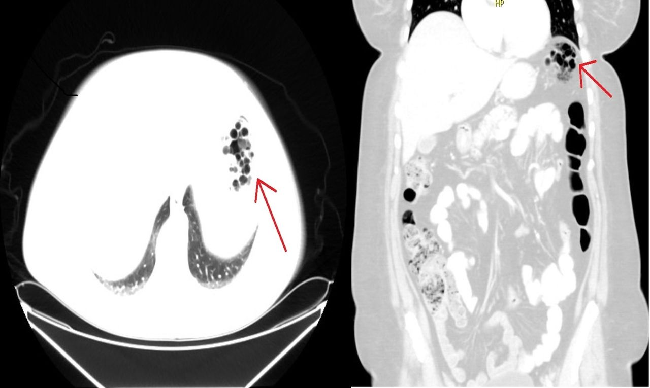 Pneumatosis cystoides intestinalis (PCI) in a patient with