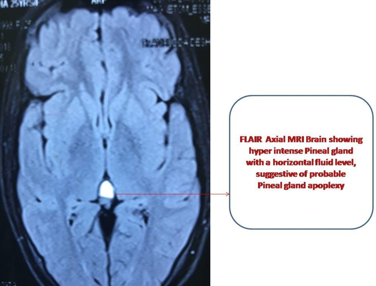 Pineal Gland Apoplexy Mimicking As Migraine Like Headache Bmj Case