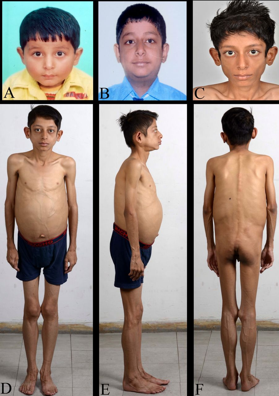 Acquired generalised lipodystrophy and type 1 diabetes