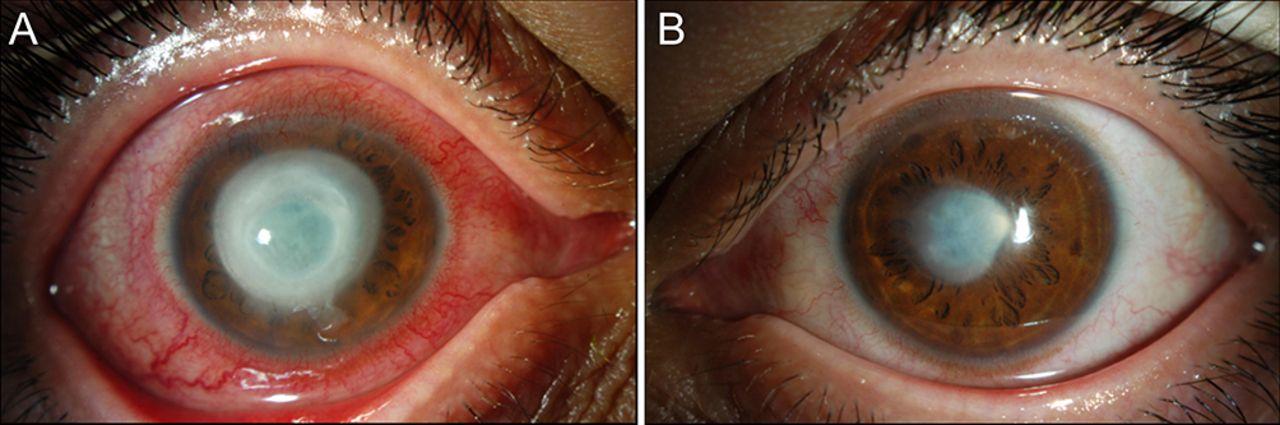 8295808361 Herpes simplex virus keratitis mimicking Acanthamoeba keratitis  a ...