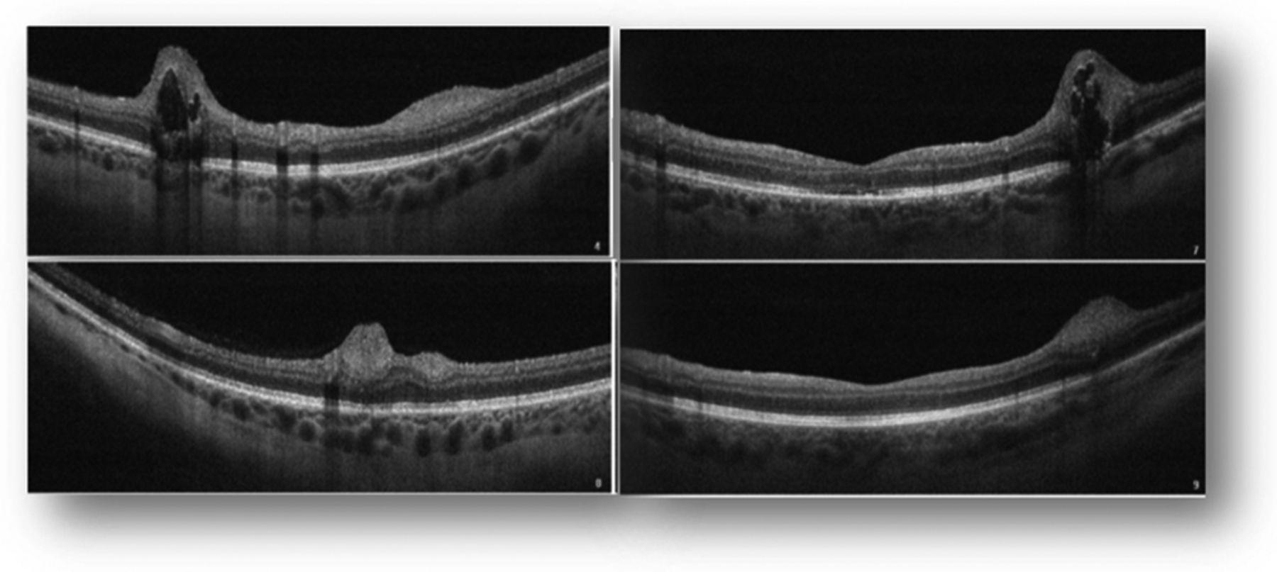 e4e7a2e404e7a Tuberous sclerosis complex  a clinical case with multiple ...